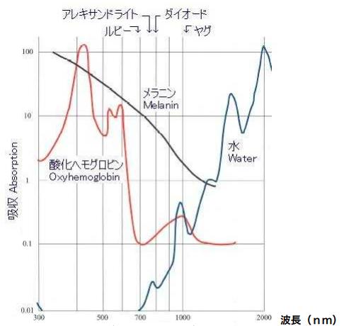 各レーザーの物質別吸収率